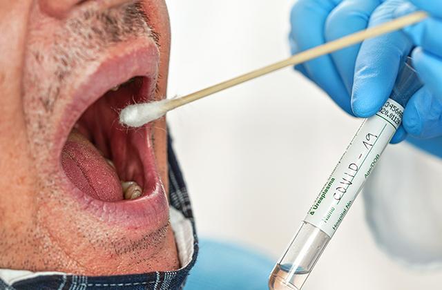 CVID-19 Mouth swab
